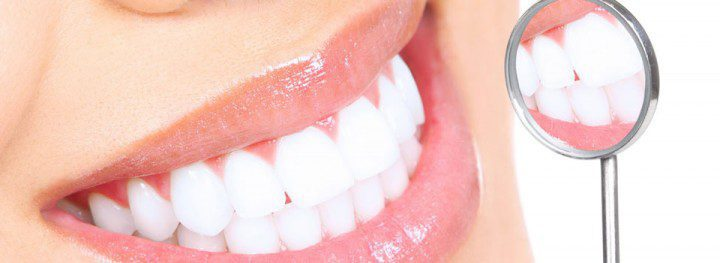 teeth whitening in Melbourne