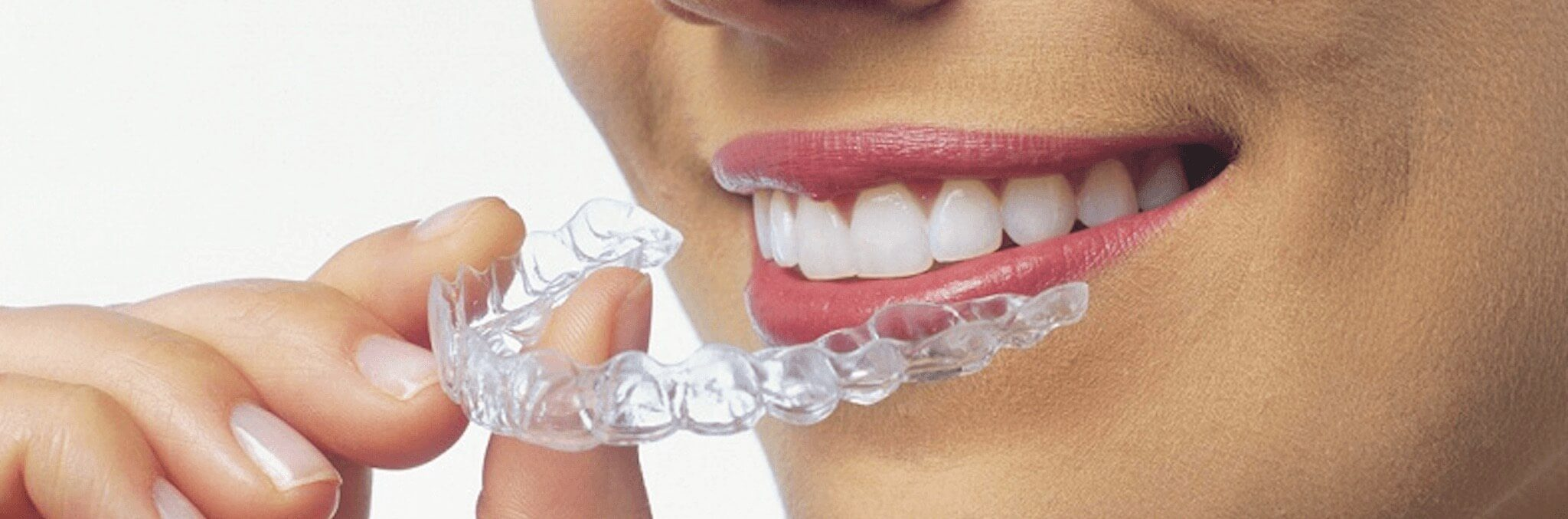 how to get affordable braces