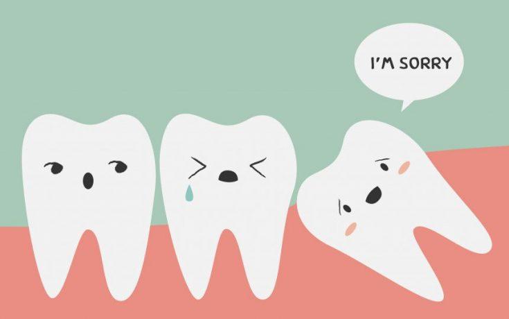 Wisdom Teeth Removal Sydney