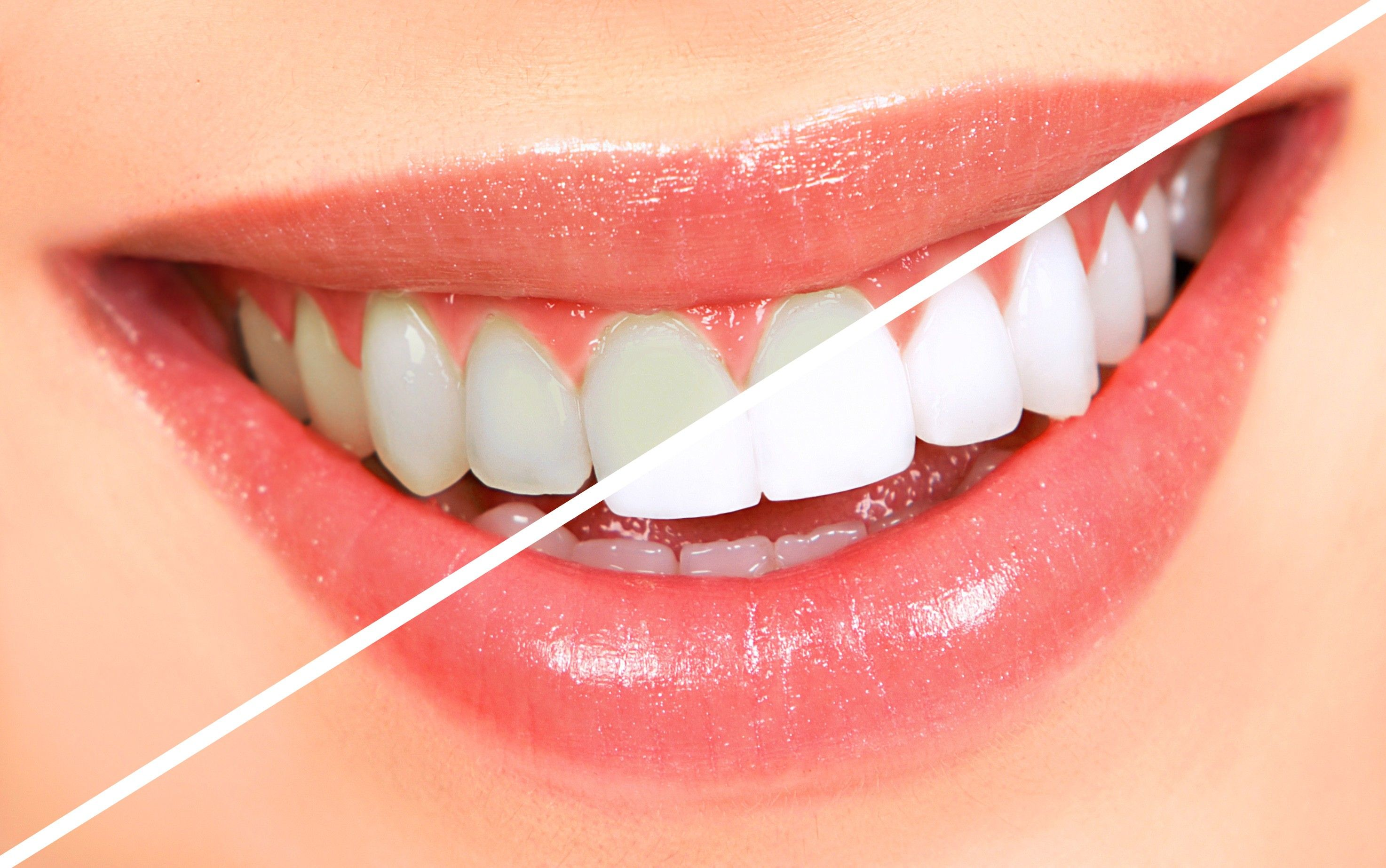 Cost of Professional Teeth Whitening