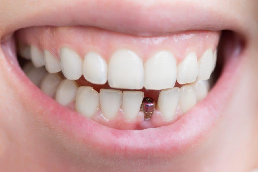 Dental implants for missing teeth