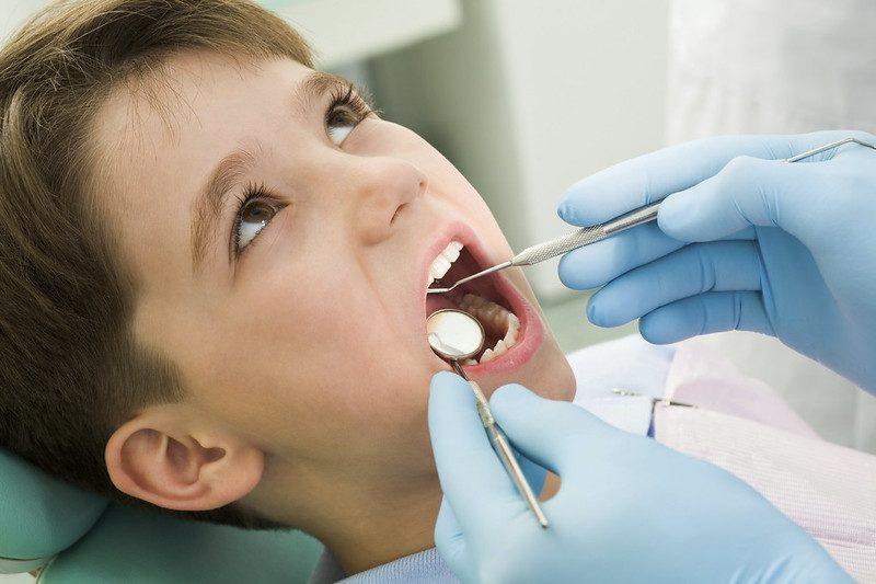 Impacted Wisdom Teeth Cause Cavities