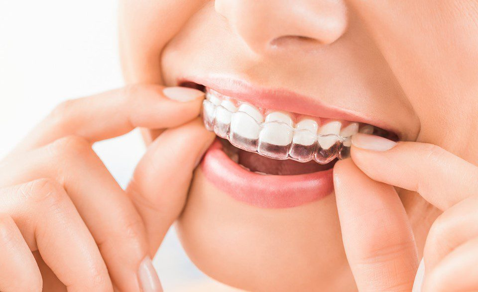 Are Invisible Braces Better Than Traditional Braces?