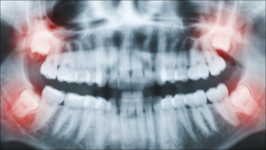 Insights on the Cost of Wisdom Teeth Removal