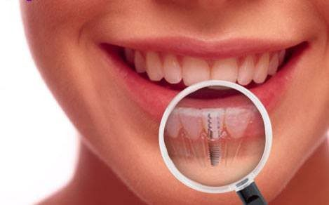 How Dental Implants Fare Better than Other Tooth Replacement Solutions