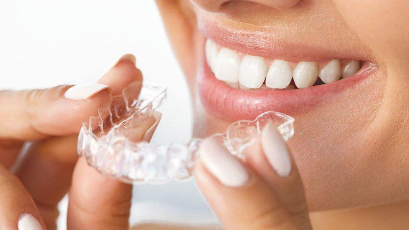Common Dental Issues that Invisible Braces Can Fix