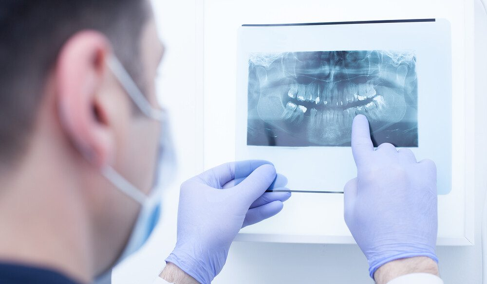 Everything you must know about Impacted Wisdom Teeth!