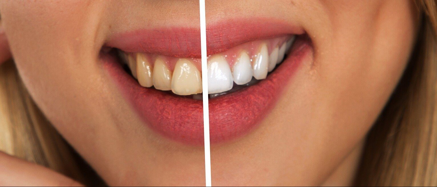 Affordable teeth whitening in Melbourne services