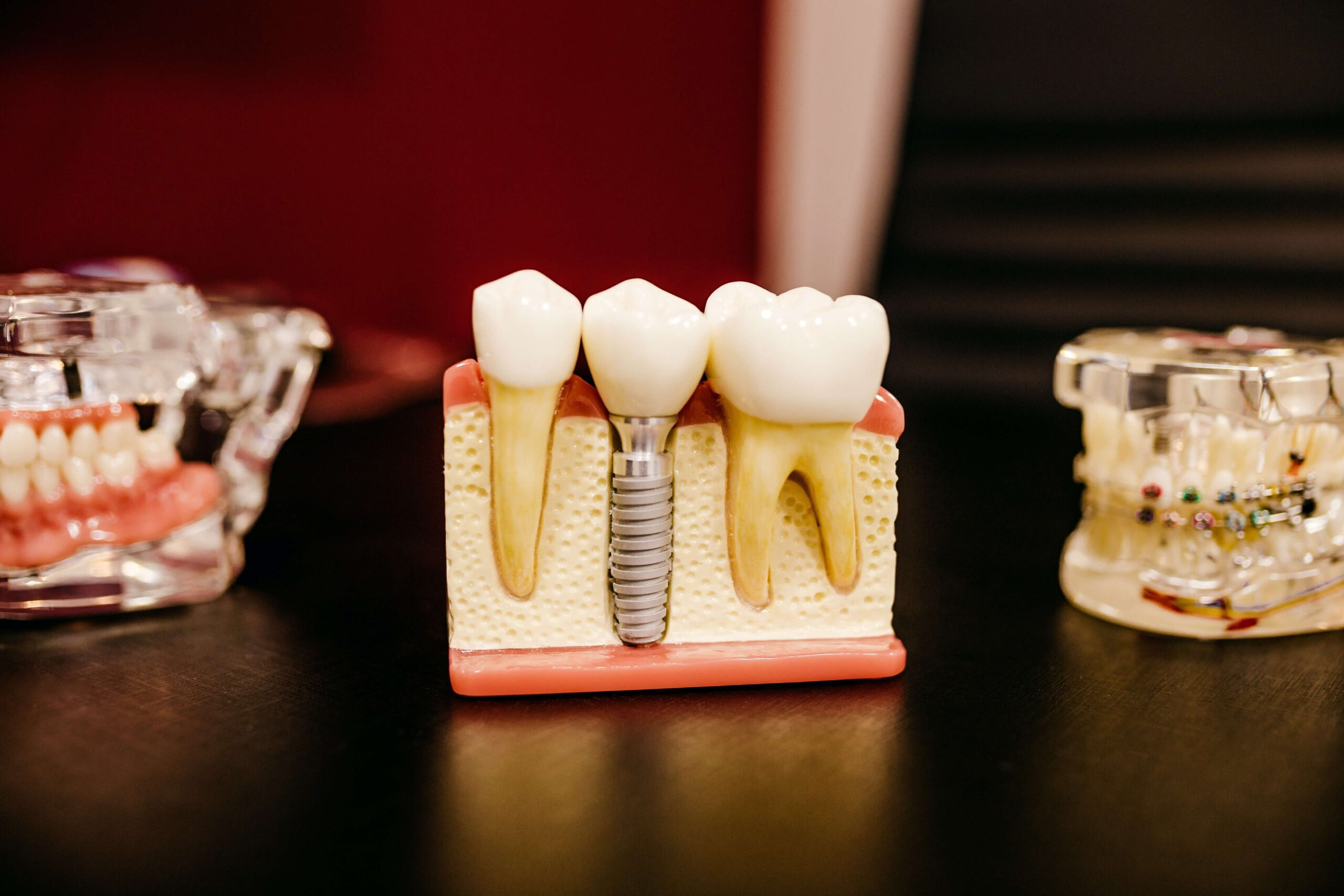 Signs You Need Dental Implants