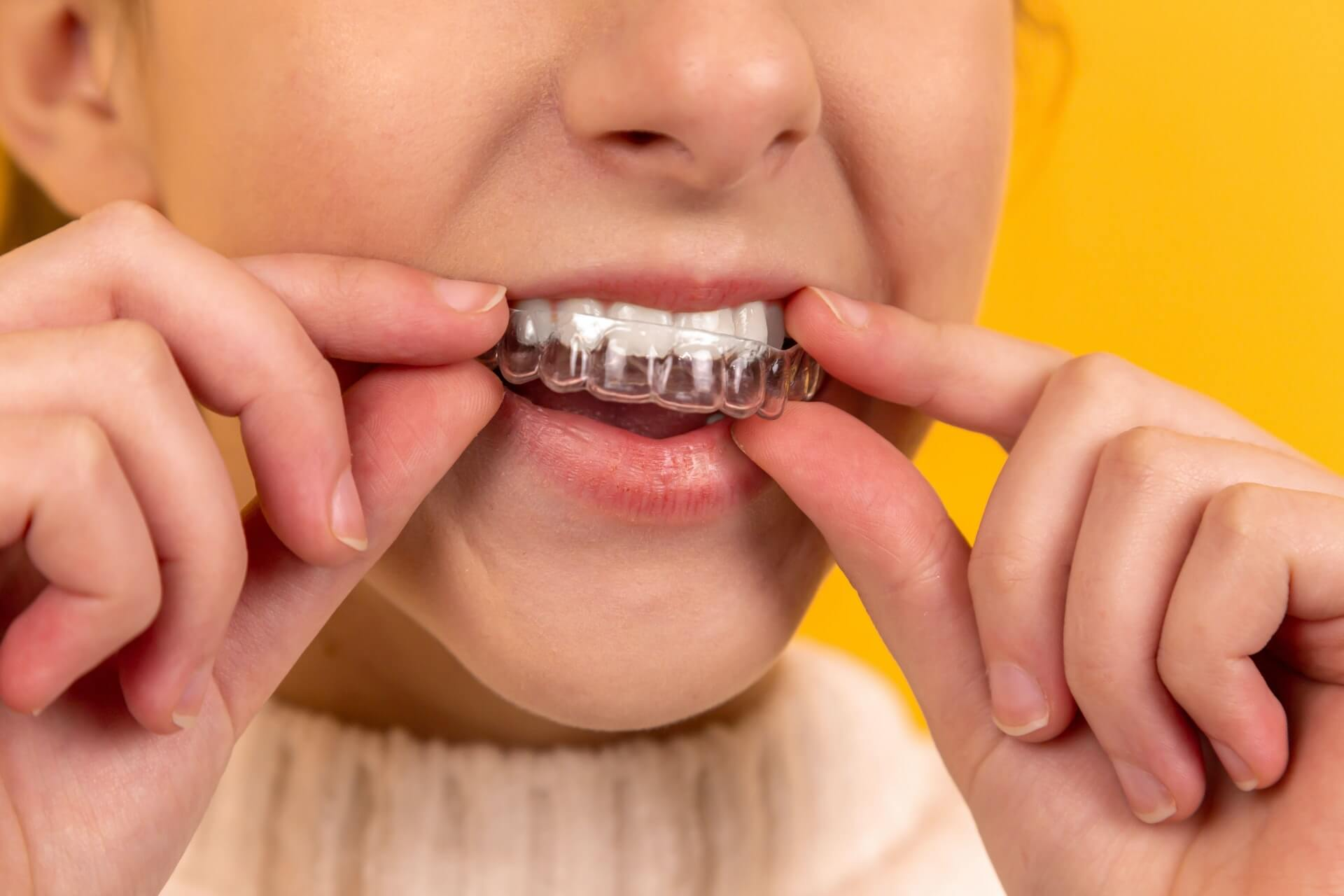 6 Astounding Benefits of Straight Teeth for Your Health