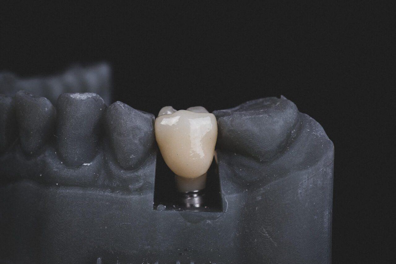 Dental Bridge and Dental Implant – What Should I Choose?